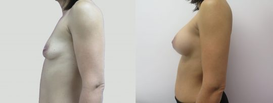 Case #94 Submuscular inframammary breast augmentation
