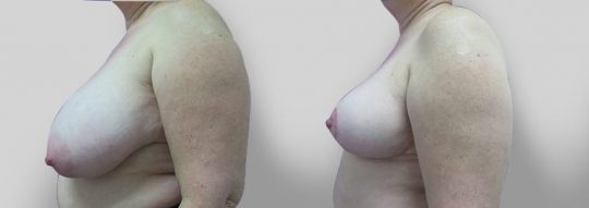 Case #23 Breast Reduction