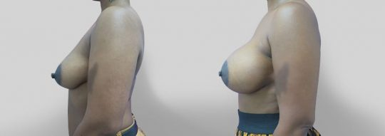 Case #24 Submuscular inframammary breast augmentation