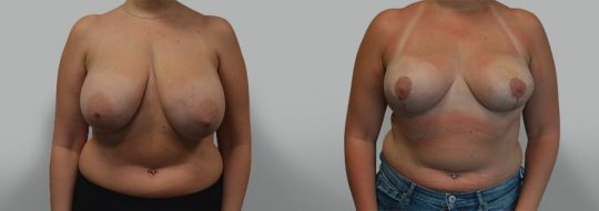 Case #27 Breast Reduction