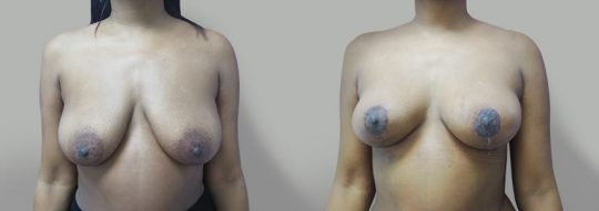 Case #33 Breast Lift
