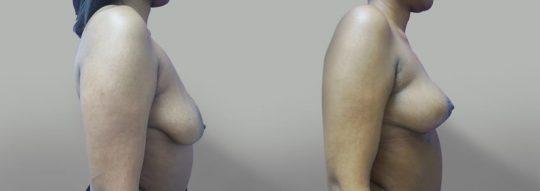 Case #33 Breast Lift
