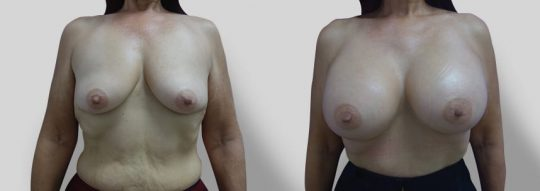 Case #40 Submuscular inframammary breast augmentation