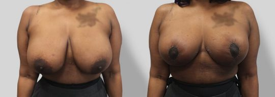 Case #41 Breast Reduction