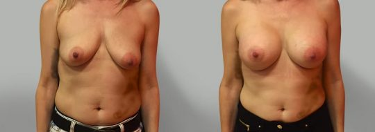 Case #44 Submuscular inframammary breast augmentation
