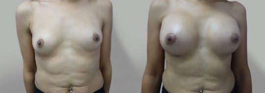 Case #46 Submuscular inframammary breast augmentation