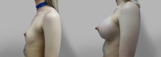 Case #47 Submuscular inframammary breast augmentation