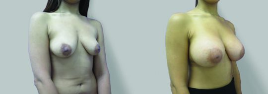 Case #53 Submuscular inframammary breast augmentation