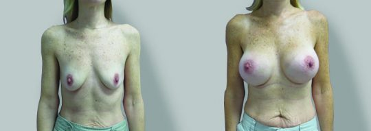Case #54 Submuscular inframammary breast augmentation
