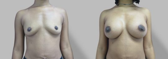 Case #60 Submuscular inframammary breast augmentation
