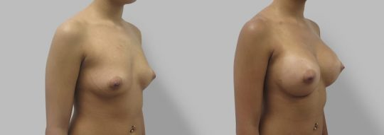 Case #61 Submuscular inframammary breast augmentation