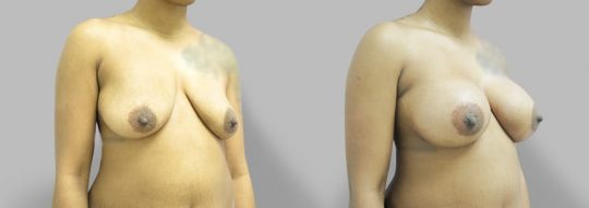 Case #63 Subglandular inframammary breast augmentation