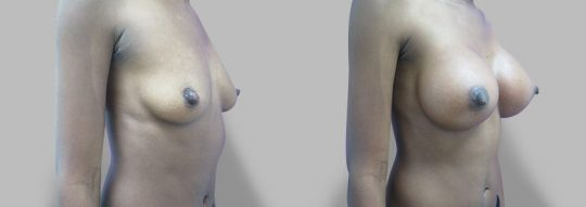 Case #64 Submuscular inframammary breast augmentation