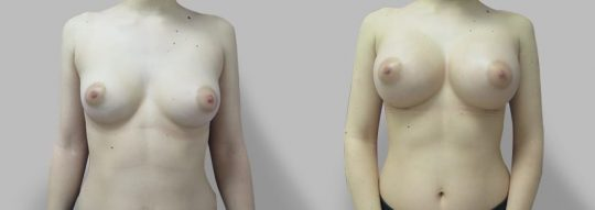 Case #68 Breast augmentation