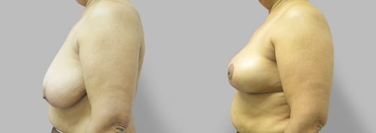 Case #69 Breast Reduction