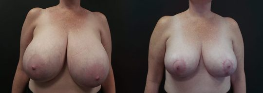 Case #73 Breast Reduction