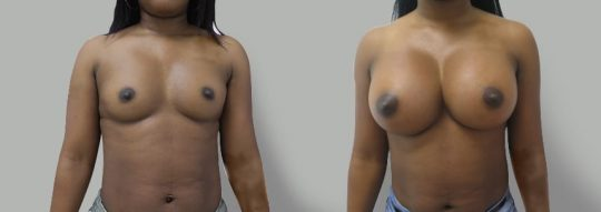 Case #20 Submuscular inframammary breast augmentation