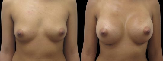 Case #133 Breast augmentation