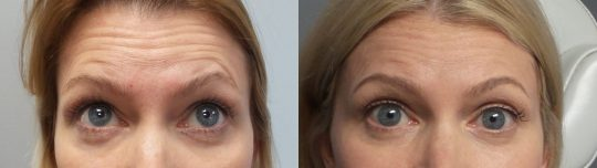 Case #108 Botox Injections full treatment