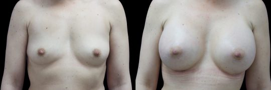 Case #109 Breast augmentation