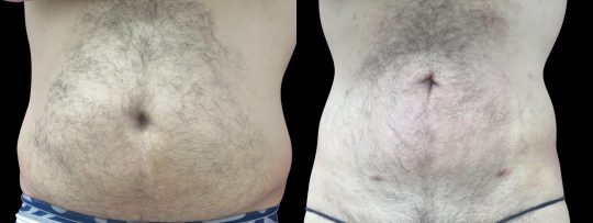 Case #67 Liposuction of abdomen and flanks