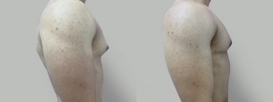 Case #38 Gynecomastia Reduction