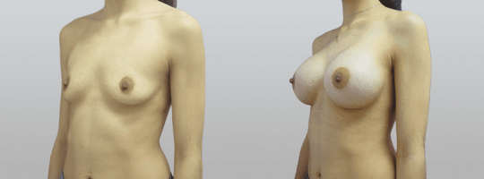 Case #82 Breast augmentation