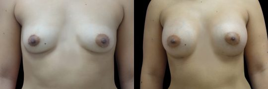 Case #90 Breast augmentation