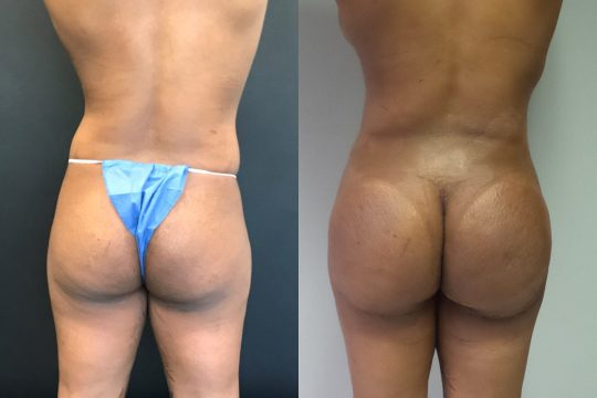 Case #129 Brazilian Butt Lift