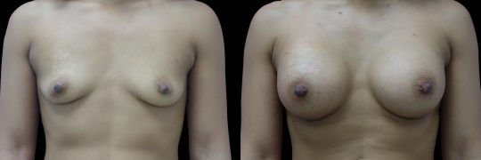 Case #132 Breast augmentation