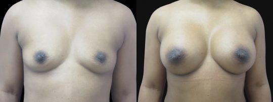 Case #143 Breast augmentation
