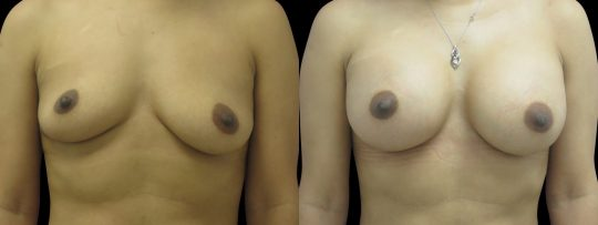Case #149 Breast augmentation