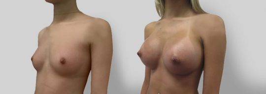 Case #12 Breast augmentation