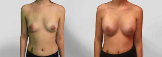 Case #26 Breast augmentation