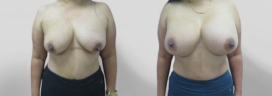 Case #31 Breast augmentation