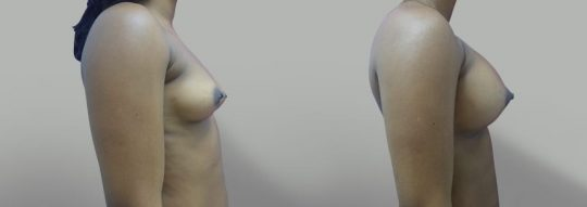 Case #36 Breast augmentation