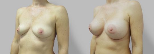 Case #62 Breast augmentation