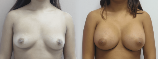 Case #76 Breast augmentation