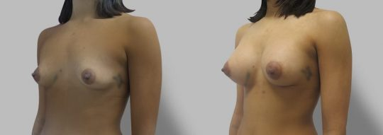 Case #77 Breast augmentation