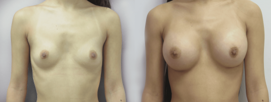 Case #78 Breast augmentation
