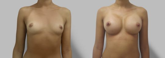 Case #79 Breast augmentation
