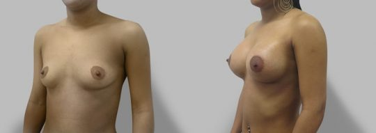 Case #83 Breast augmentation