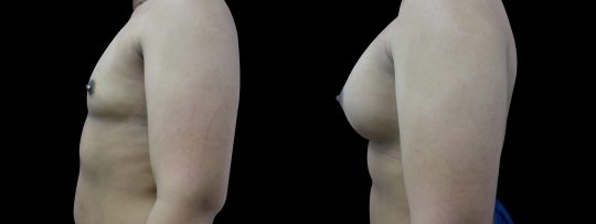 Case #95 Breast augmentation