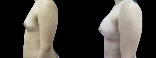 Case #104 Breast augmentation