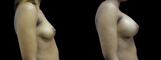 Case #105 Breast augmentation