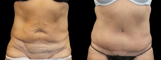 Case #162 Abdominoplasty and liposuction of abdomen and flanks