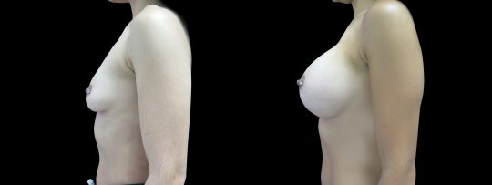 Case #126 Breast augmentation