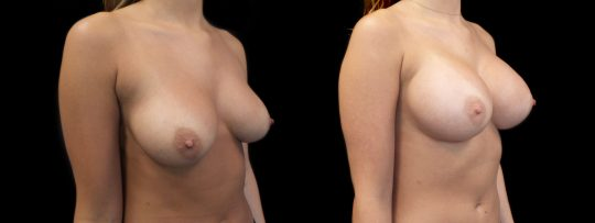 Case #127 Breast augmentation
