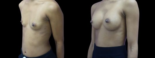 Case #128 Breast augmentation