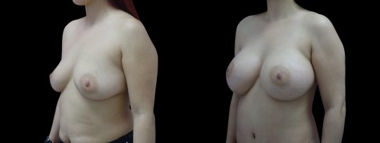 Case #134 Breast augmentation